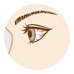 目の充血原因