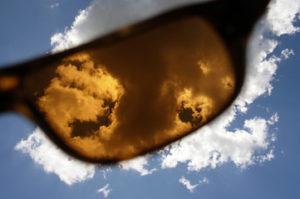 瞼裂斑紫外線